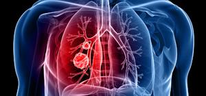 Pneumonectomia