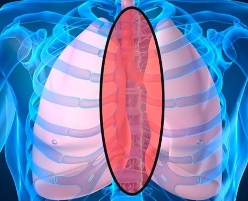 Tumor Mediastino