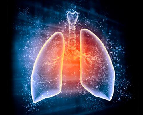 Tuberculose Multirresistente